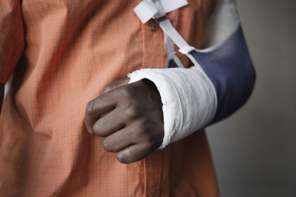 client with cast suffered broken arm in Houston auto accident