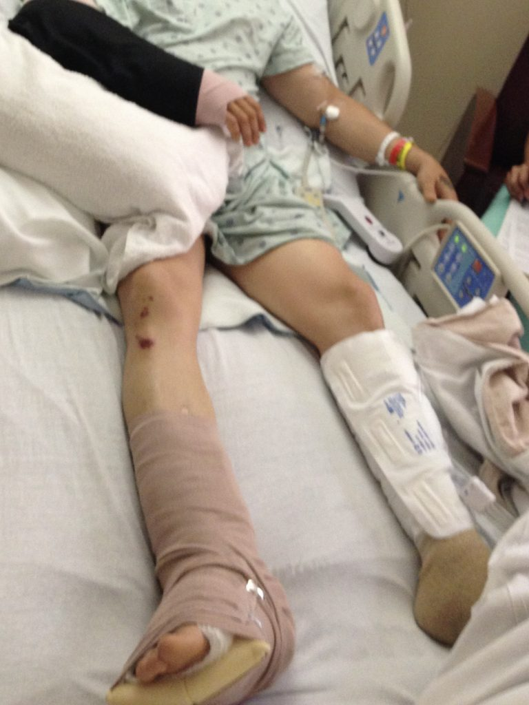 client in hospital with broken leg was ran off the road